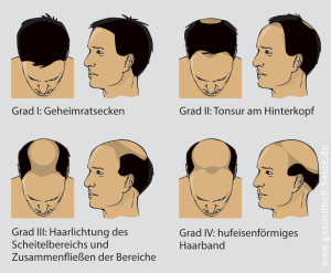 Androgener Und Diffuser Haarausfall Hirsch Apotheke Ilsfeld